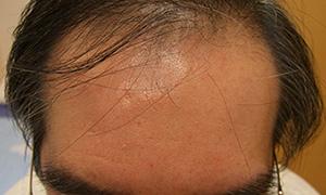 hairloss_001