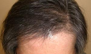 hairloss_002